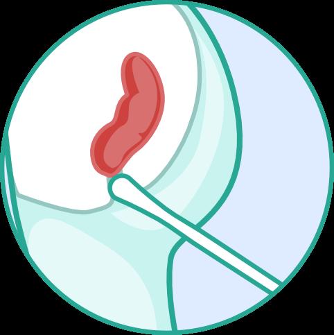 Corona Antigen Analabstrich Schnelltest