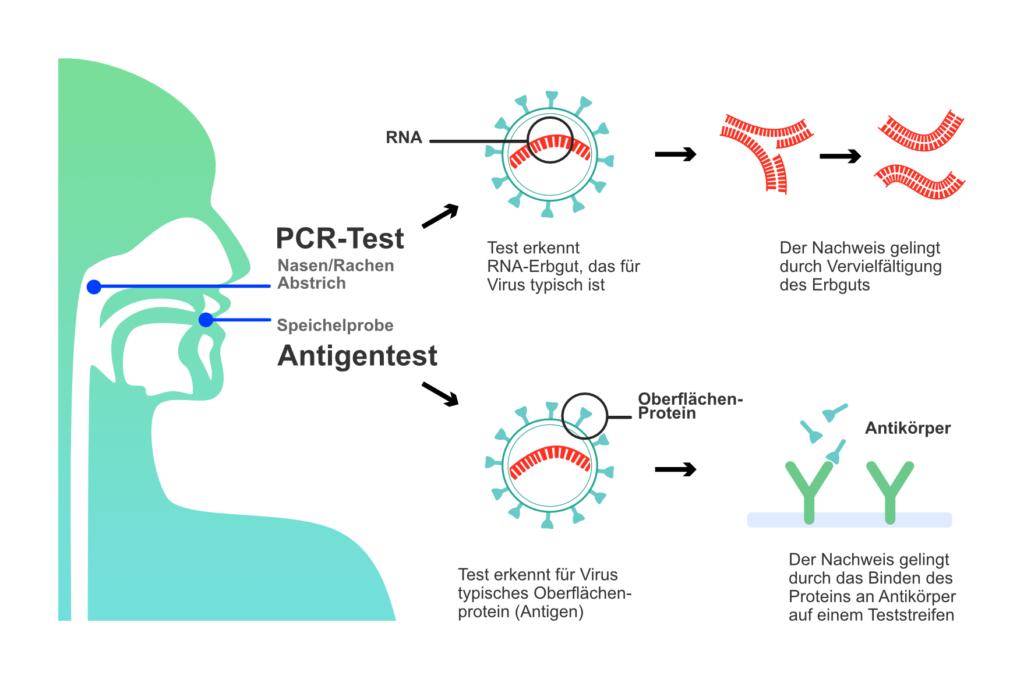 Corona PCR-Test Antigentest Vergleich